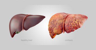 liver cirrhosis-ILBS